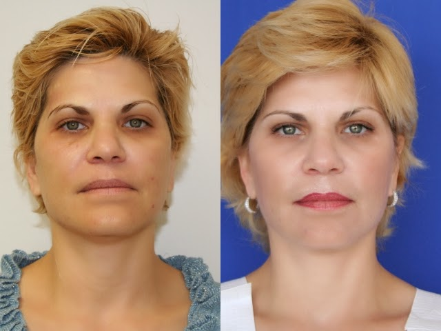 Introduction To Ultherapy – Things You Should Know